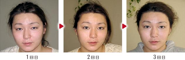 小顔矯正ビフォー&アフター02