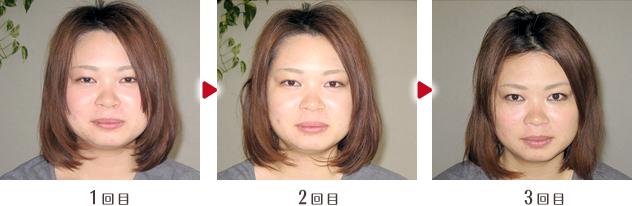 小顔矯正ビフォー&アフター01