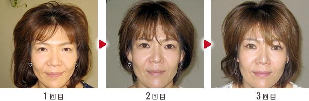 小顔矯正ビフォー&アフター03