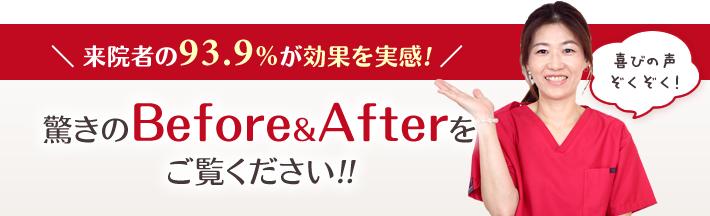 驚きのBefore&Afterをご覧ください!!